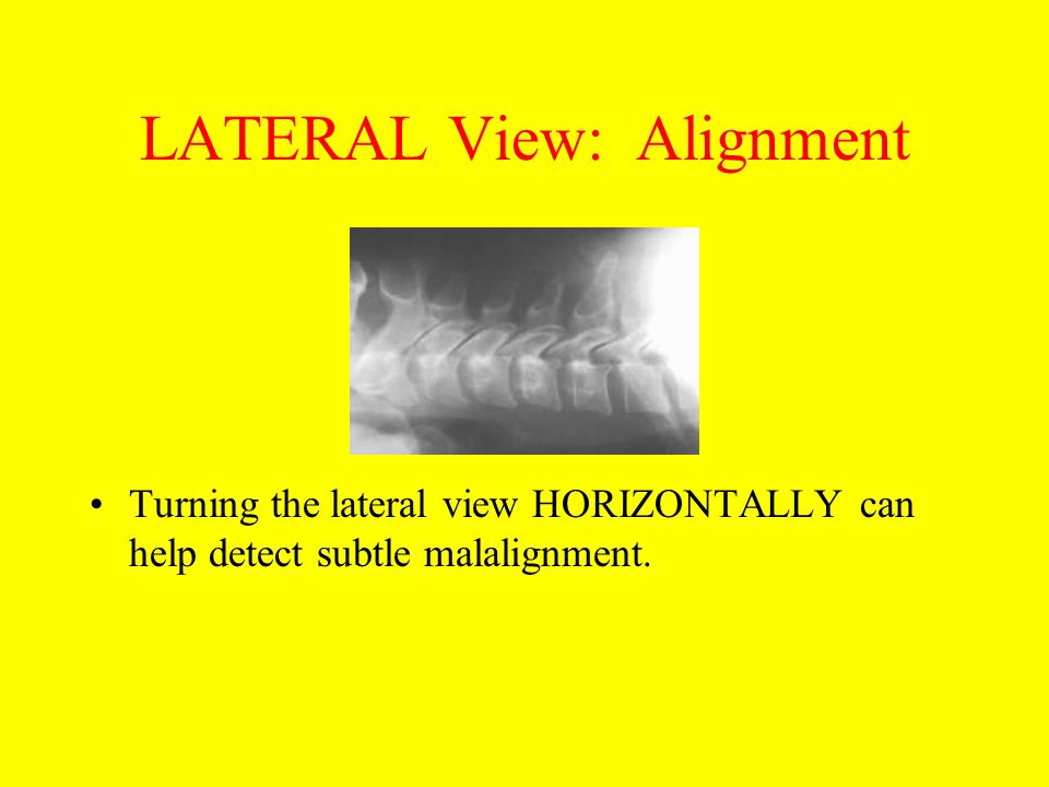 LATERAL View: Alignment Turning the lateral view HORIZONTALLY can help detect subtle malalignment.