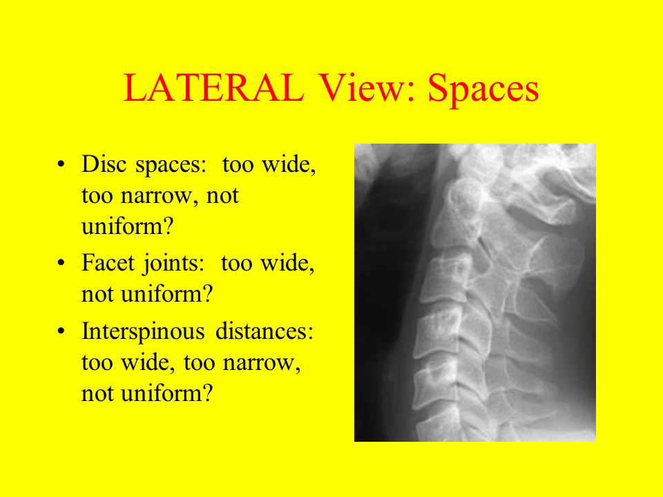 LATERAL View: Spaces Disc spaces: too wide, too narrow, not uniform? Facet joints: too wide, not uniform? Interspinous distances: too wide, too narrow
