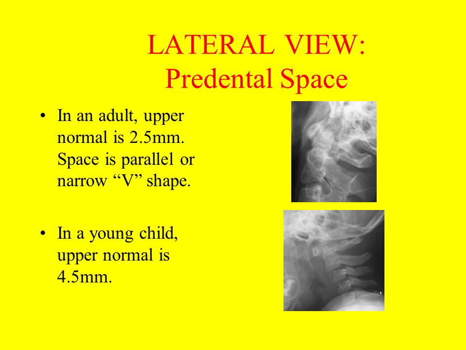 "LATERAL VIEW: Predental Space In an adult, upper normal is 2.5mm. Space is parallel or narrow ""V"" shape. In a young child, upper normal is 4.5mm."