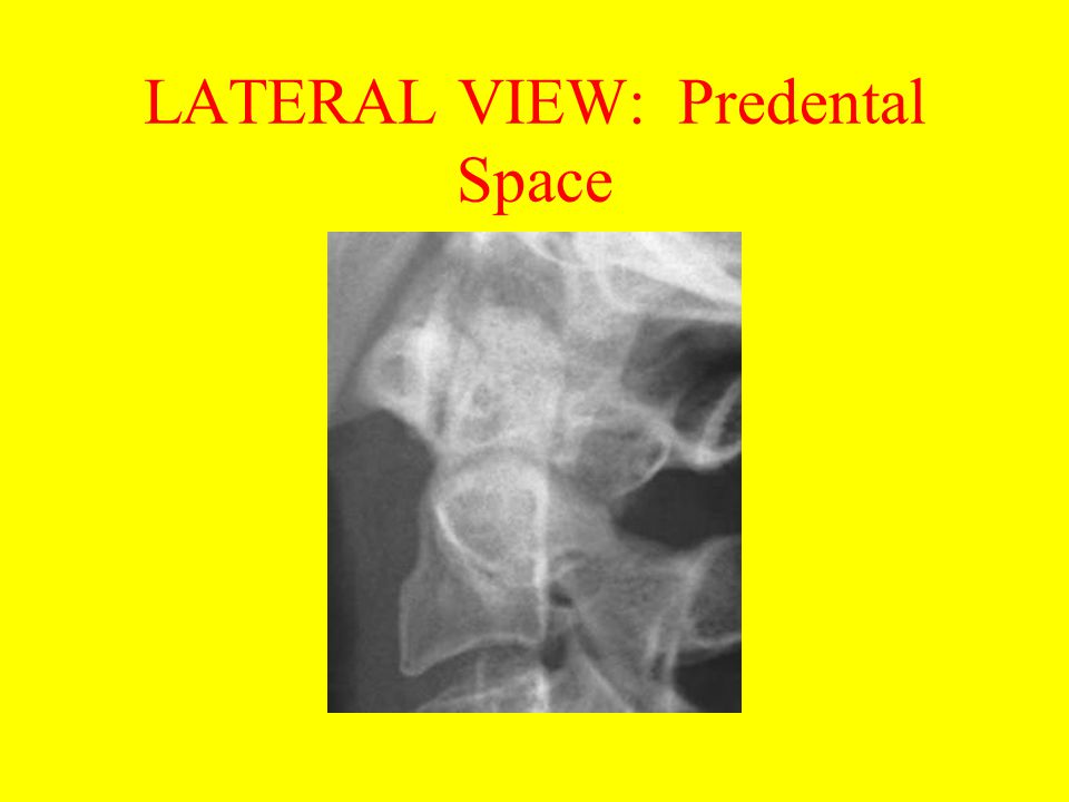 LATERAL VIEW: Predental Space