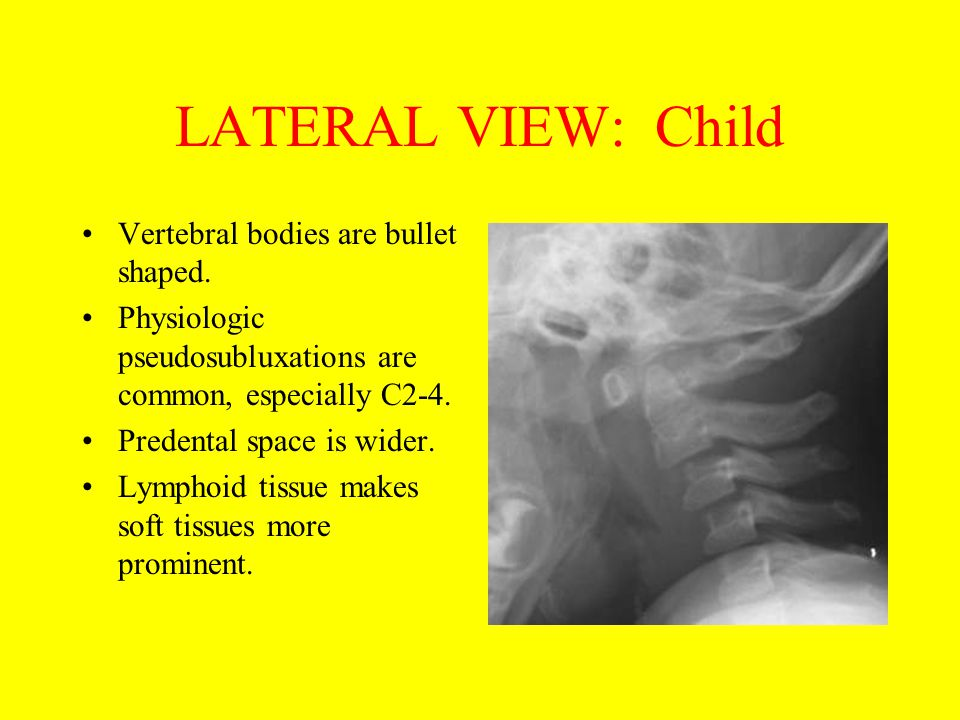 LATERAL VIEW: Child Vertebral bodies are bullet shaped. Physiologic pseudosubluxations are common, especially C2-4. Predental space is wider. Lymphoid