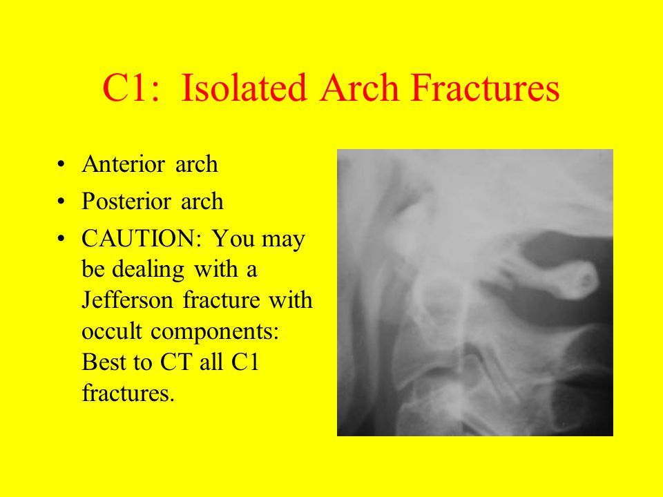 C1: Isolated Arch Fractures Anterior arch Posterior arch CAUTION: You may be dealing with a Jefferson fracture with occult components: Best to CT all