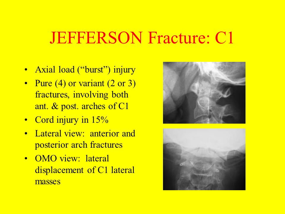 "JEFFERSON Fracture: C1 Axial load (""burst"") injury Pure (4) or variant (2 or 3) fractures, involving both ant. & post. arches of C1 Cord injury in 15%"