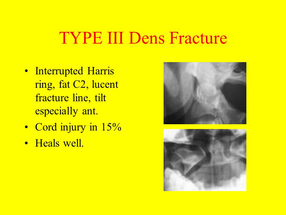 TYPE III Dens Fracture Interrupted Harris ring, fat C2, lucent fracture line, tilt especially ant. Cord injury in 15% Heals well.