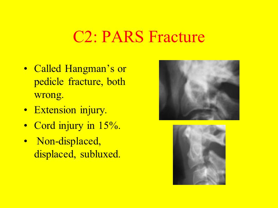 C2: PARS Fracture Called Hangman's or pedicle fracture, both wrong. Extension injury. Cord injury in 15%. Non-displaced, displaced, subluxed.