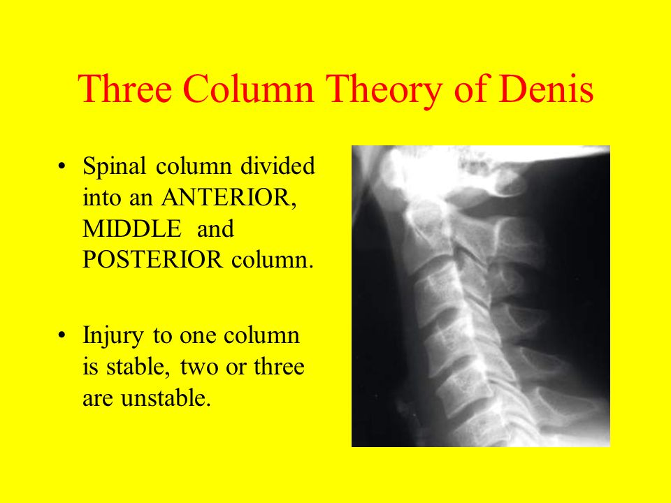 Three Column Theory of Denis Spinal column divided into an ANTERIOR, MIDDLE and POSTERIOR column. Injury to one column is stable, two or three are uns