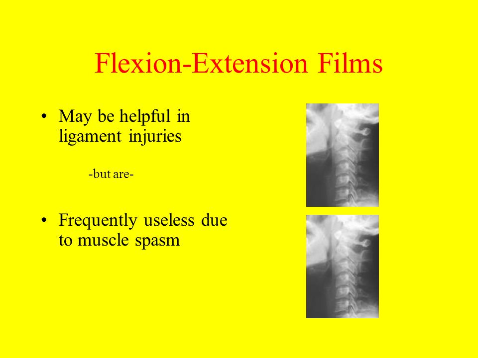 Flexion-Extension Films May be helpful in ligament injuries -but are- Frequently useless due to muscle spasm