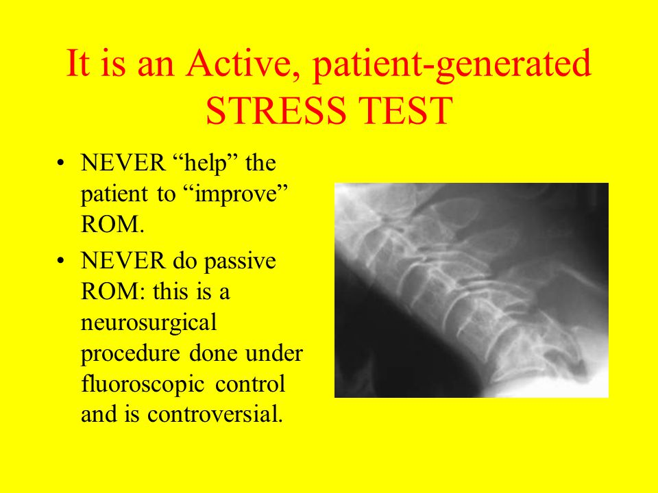 "It is an Active, patient-generated STRESS TEST NEVER ""help"" the patient to ""improve"" ROM. NEVER do passive ROM: this is a neurosurgical procedure done"