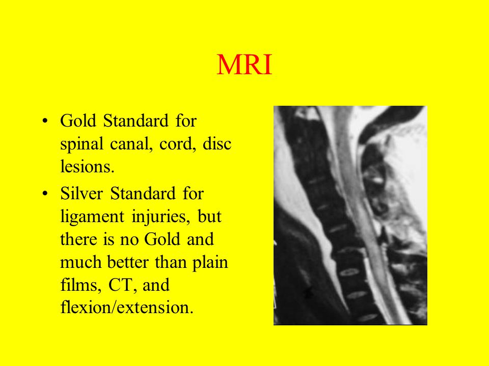 MRI Gold Standard for spinal canal, cord, disc lesions. Silver Standard for ligament injuries, but there is no Gold and much better than plain films,