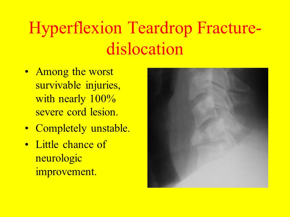 Hyperflexion Teardrop Fracture- dislocation Among the worst survivable injuries, with nearly 100% severe cord lesion. Completely unstable. Little chan