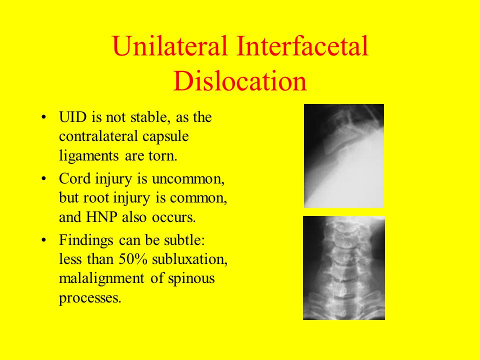Unilateral Interfacetal Dislocation UID is not stable, as the contralateral capsule ligaments are torn. Cord injury is uncommon, but root injury is co
