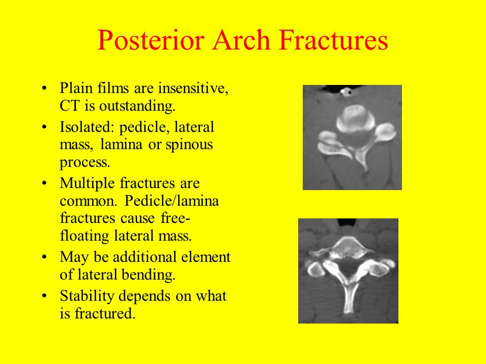Posterior Arch Fractures Plain films are insensitive, CT is outstanding. Isolated: pedicle, lateral mass, lamina or spinous process. Multiple fracture