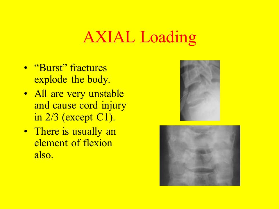 "AXIAL Loading ""Burst"" fractures explode the body. All are very unstable and cause cord injury in 2/3 (except C1). There is usually an element of flexi"