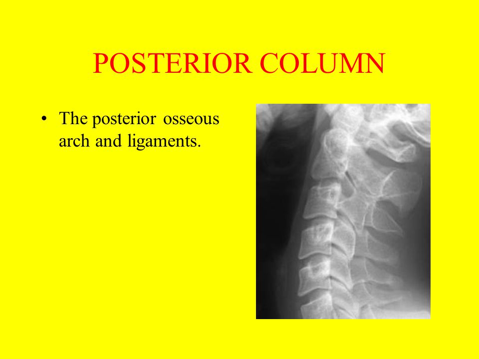 POSTERIOR COLUMN The posterior osseous arch and ligaments.