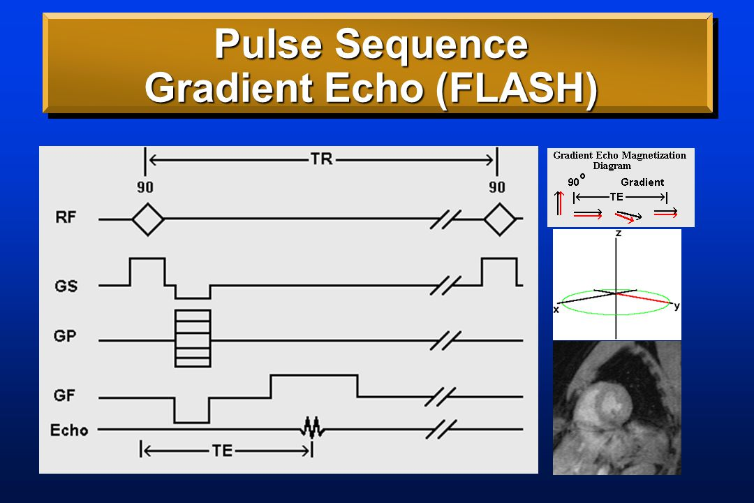 Pulse Sequence Gradient Echo (FLASH)