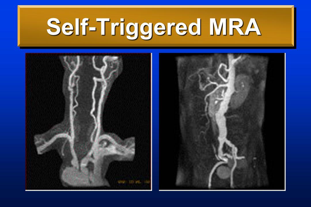 Self-Triggered MRA