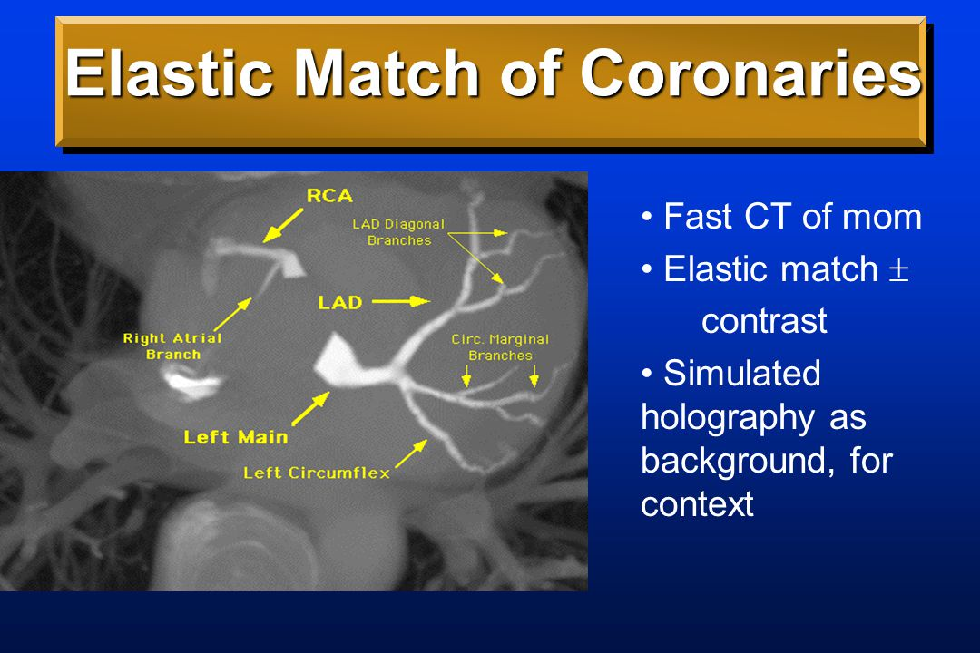 Elastic Match of Coronaries Fast CT of mom Elastic match  contrast Simulated holography as background, for context