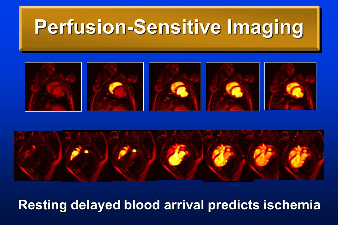 Perfusion-Sensitive Imaging Resting delayed blood arrival predicts ischemia
