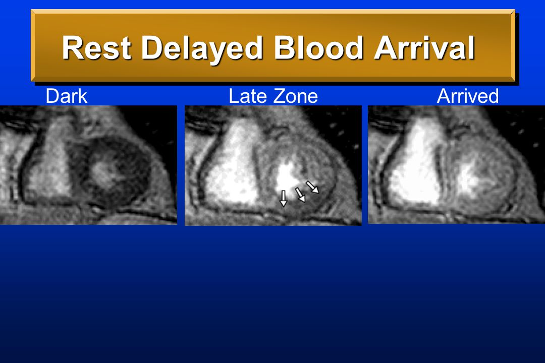 Rest Delayed Blood Arrival Dark Late Zone Arrived