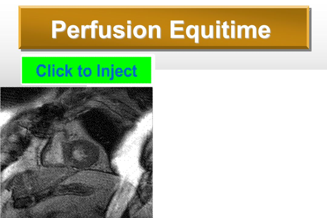 Perfusion Equitime
