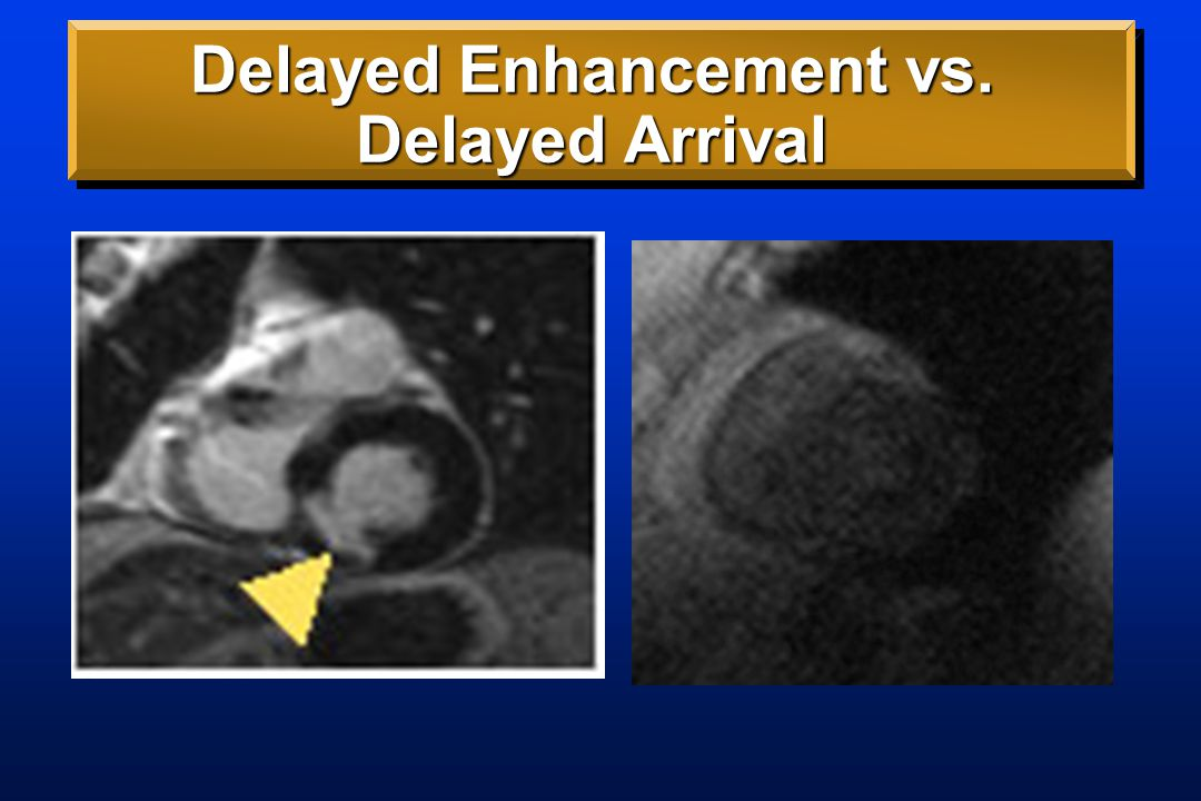 Delayed Enhancement vs. Delayed Arrival