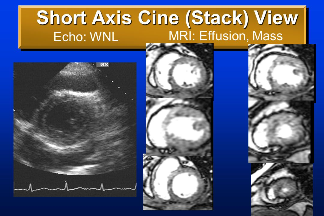 Short Axis Cine (Stack) View MRI: Effusion, Mass Echo: WNL