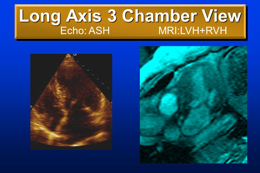 Long Axis 3 Chamber View Echo: ASHMRI:LVH+RVH