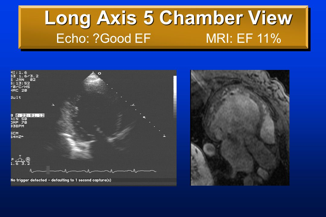 Long Axis 5 Chamber View Echo: ?Good EFMRI: EF 11%