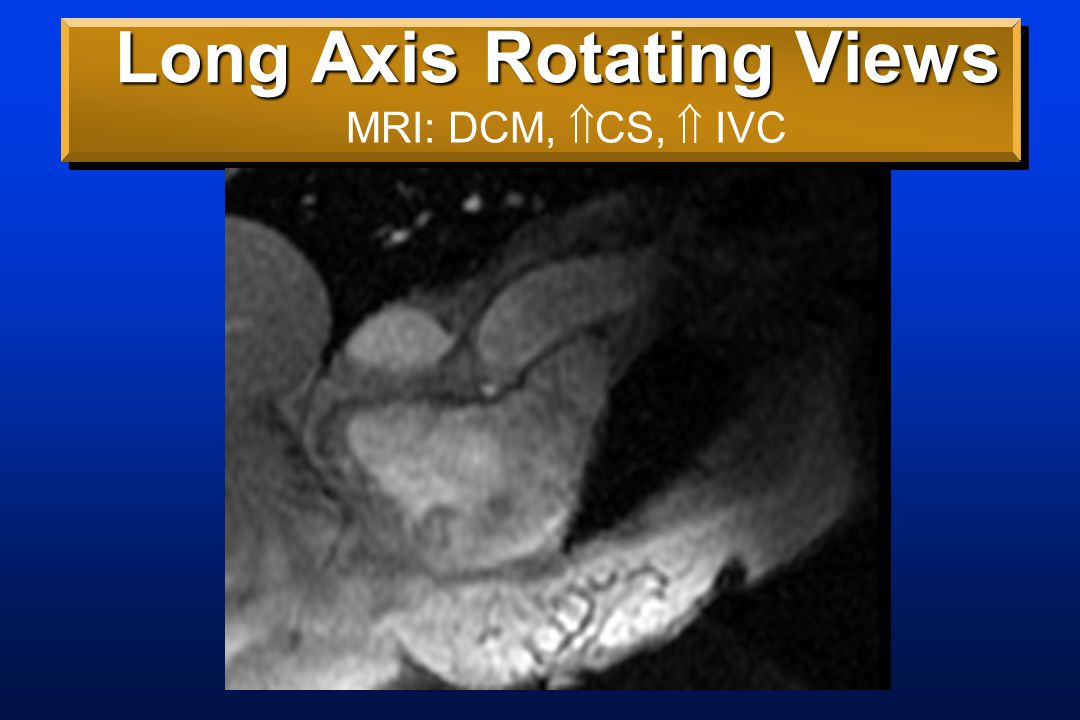 Long Axis Rotating Views MRI: DCM,  CS,  IVC