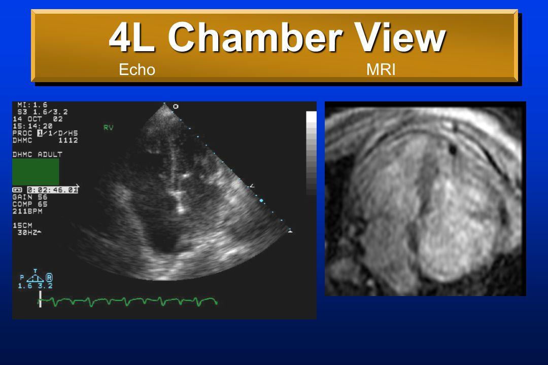 4L Chamber View EchoMRI