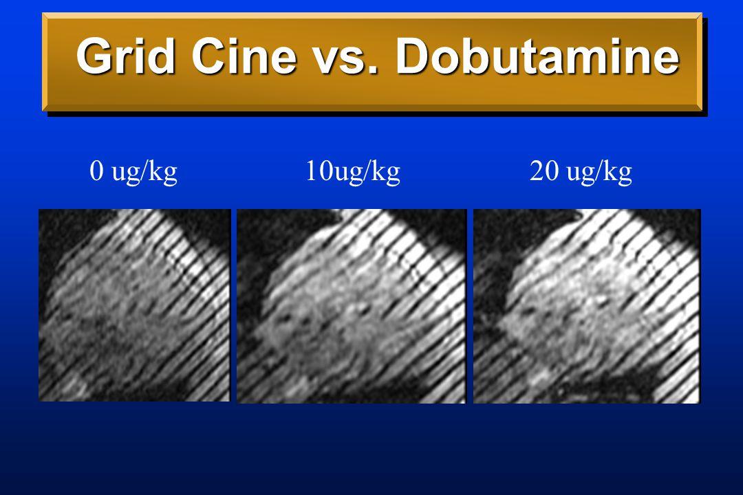 Grid Cine vs. Dobutamine 10ug/kg0 ug/kg20 ug/kg