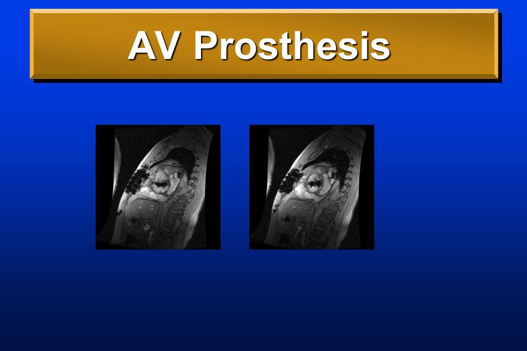 AV Prosthesis