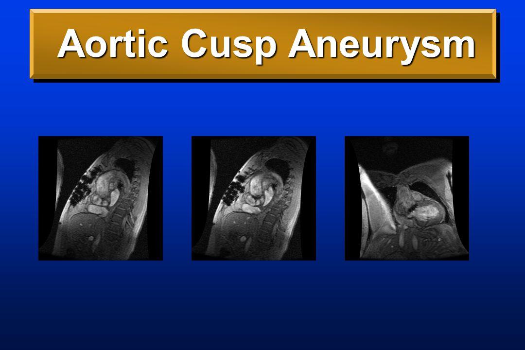 Aortic Cusp Aneurysm