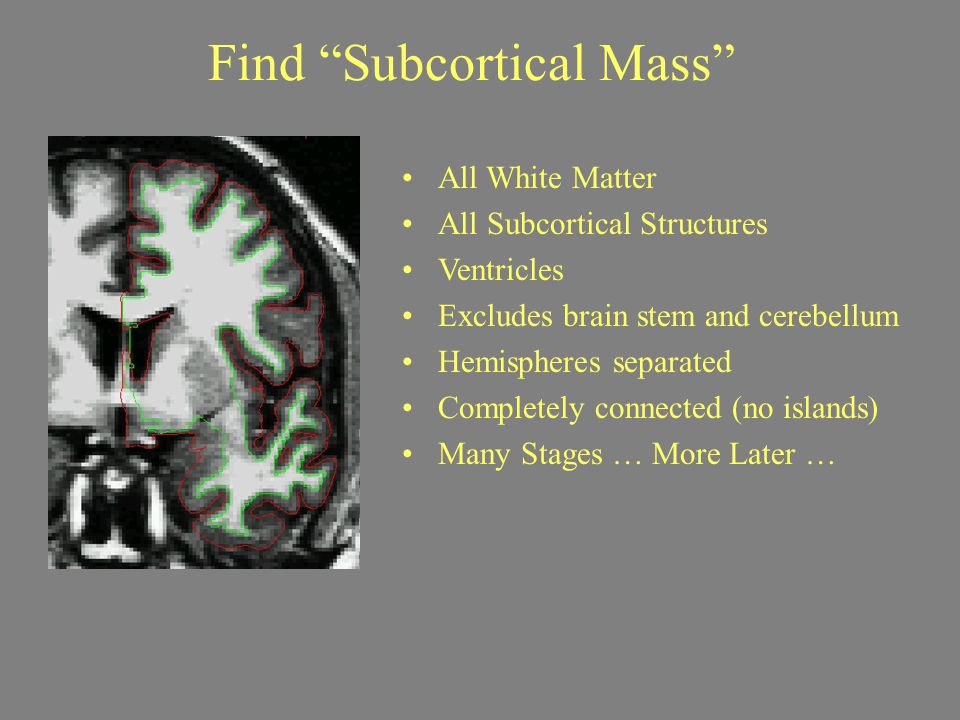 """Find """"Subcortical Mass"""" All White Matter All Subcortical Structures Ventricles Excludes brain stem and cerebellum Hemispheres separated Completely con"""