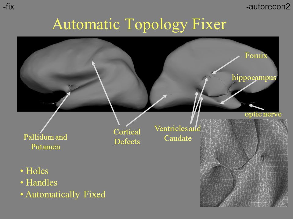 Automatic Topology Fixer Fornix Pallidum and Putamen hippocampus Ventricles and Caudate Cortical Defects Holes Handles Automatically Fixed optic nerve