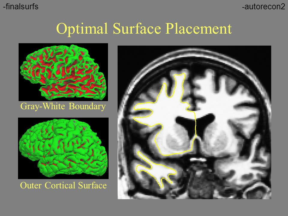 Optimal Surface Placement Gray-White Boundary Outer Cortical Surface - autorecon2-finalsurfs