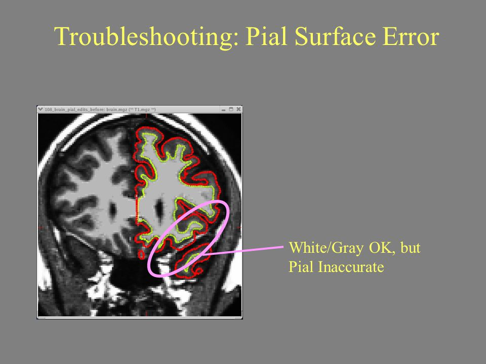 White/Gray OK, but Pial Inaccurate Troubleshooting: Pial Surface Error