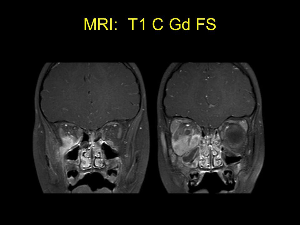 MRI: T1 C Gd FS