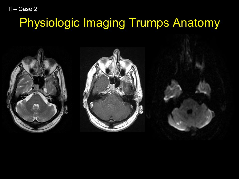 Physiologic Imaging Trumps Anatomy II – Case 2