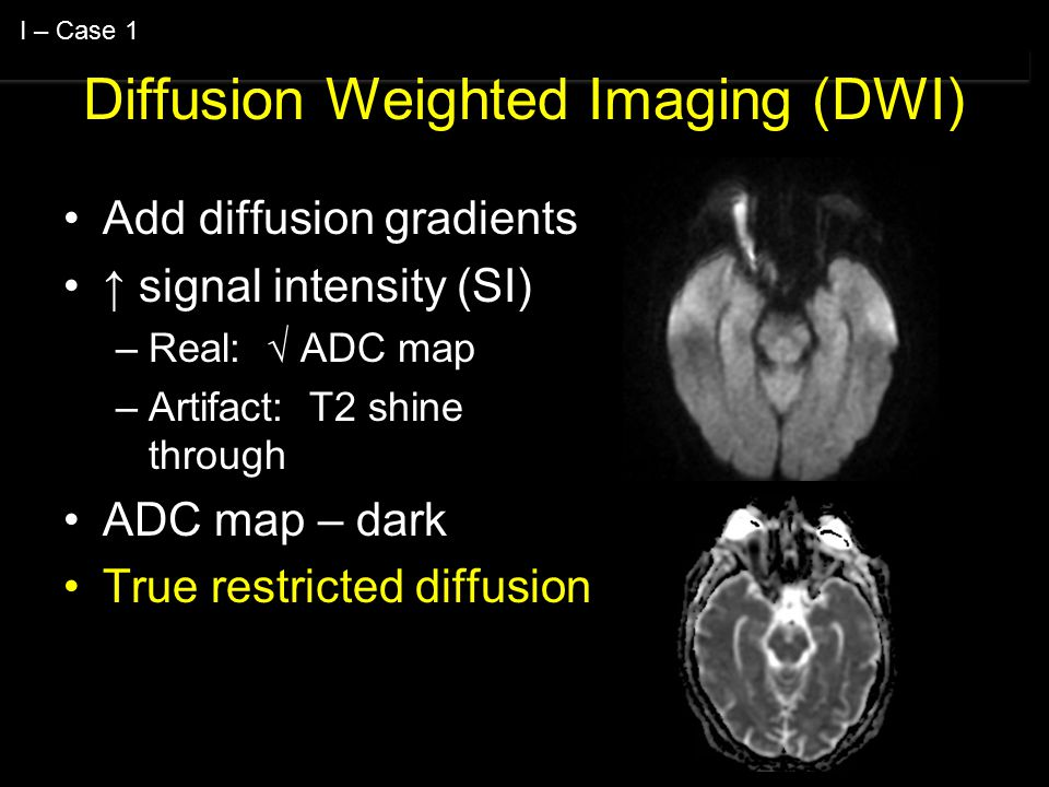 Diffusion Weighted Imaging (DWI) Add diffusion gradients ↑ signal intensity (SI) –Real: √ ADC map –Artifact: T2 shine through ADC map – dark True restricted diffusion I – Case 1