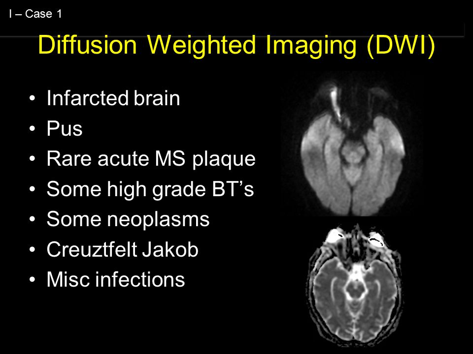 Diffusion Weighted Imaging (DWI) Infarcted brain Pus Rare acute MS plaque Some high grade BT's Some neoplasms Creuztfelt Jakob Misc infections I – Case 1