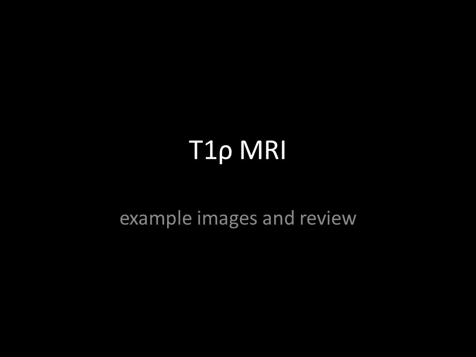 T1ρ MRI example images and review