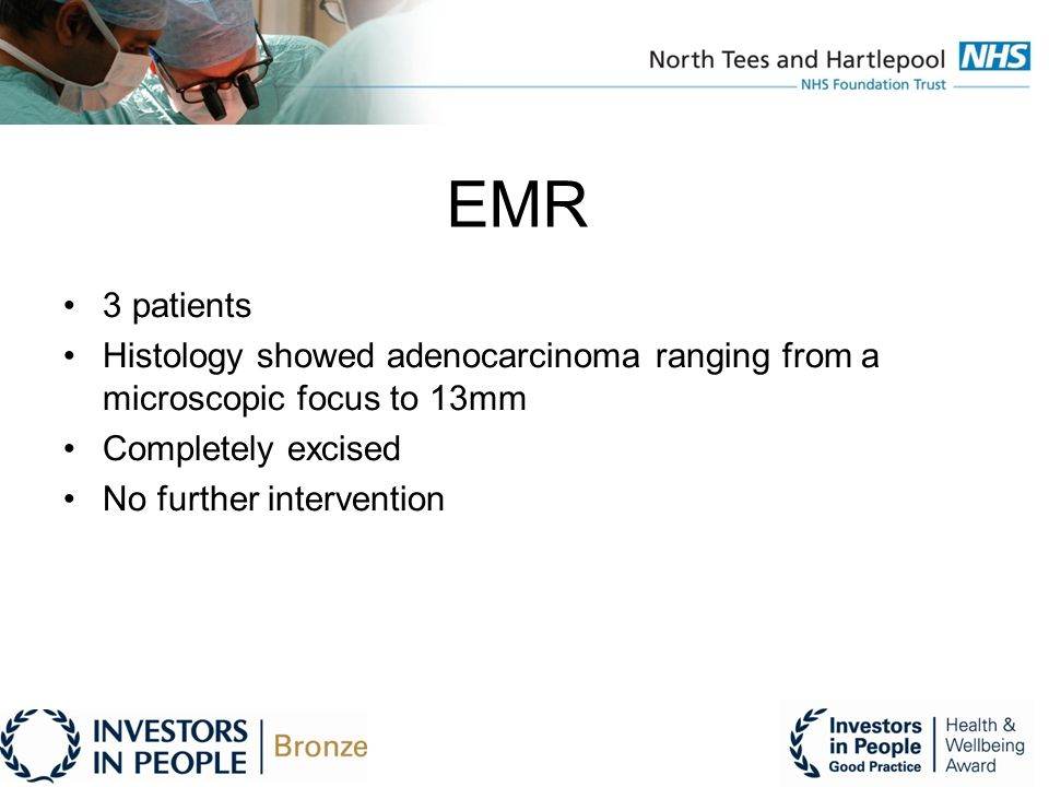 EMR 3 patients Histology showed adenocarcinoma ranging from a microscopic focus to 13mm Completely excised No further intervention