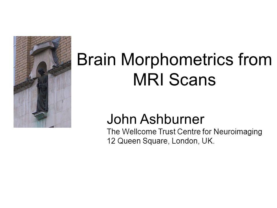 Brain Morphometrics from MRI Scans John Ashburner The Wellcome Trust Centre for Neuroimaging 12 Queen Square, London, UK.