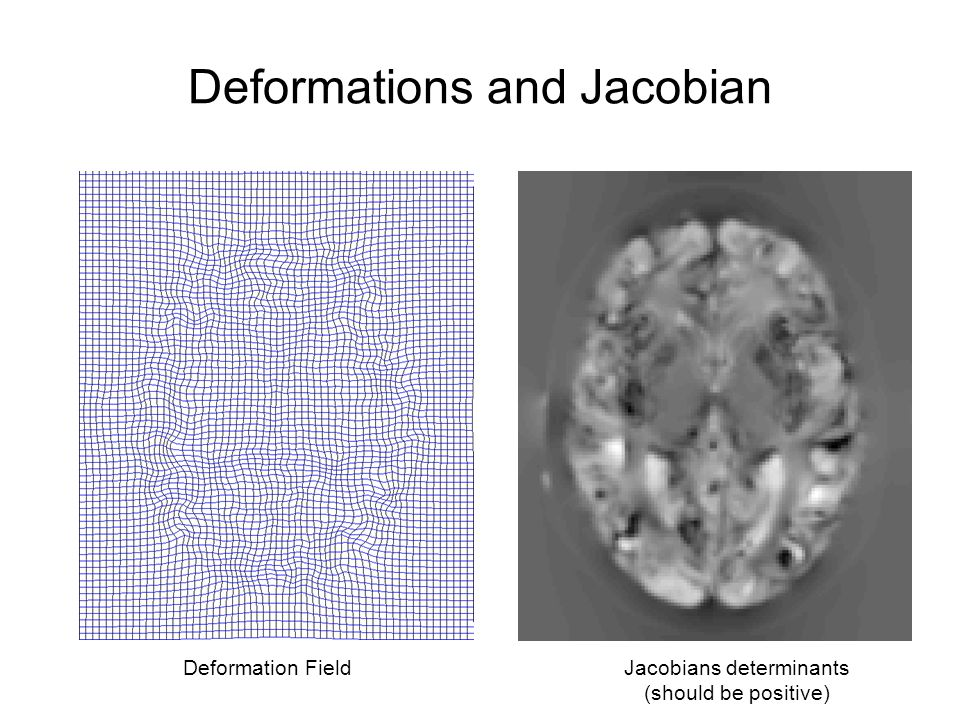 Deformations and Jacobian Deformation FieldJacobians determinants (should be positive)