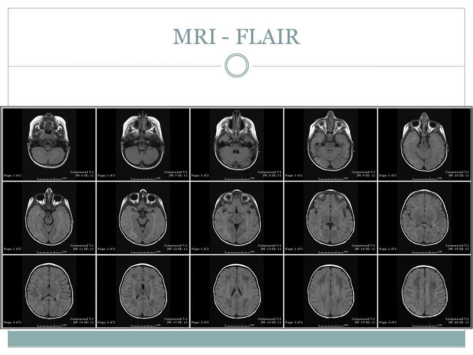 MRI - FLAIR