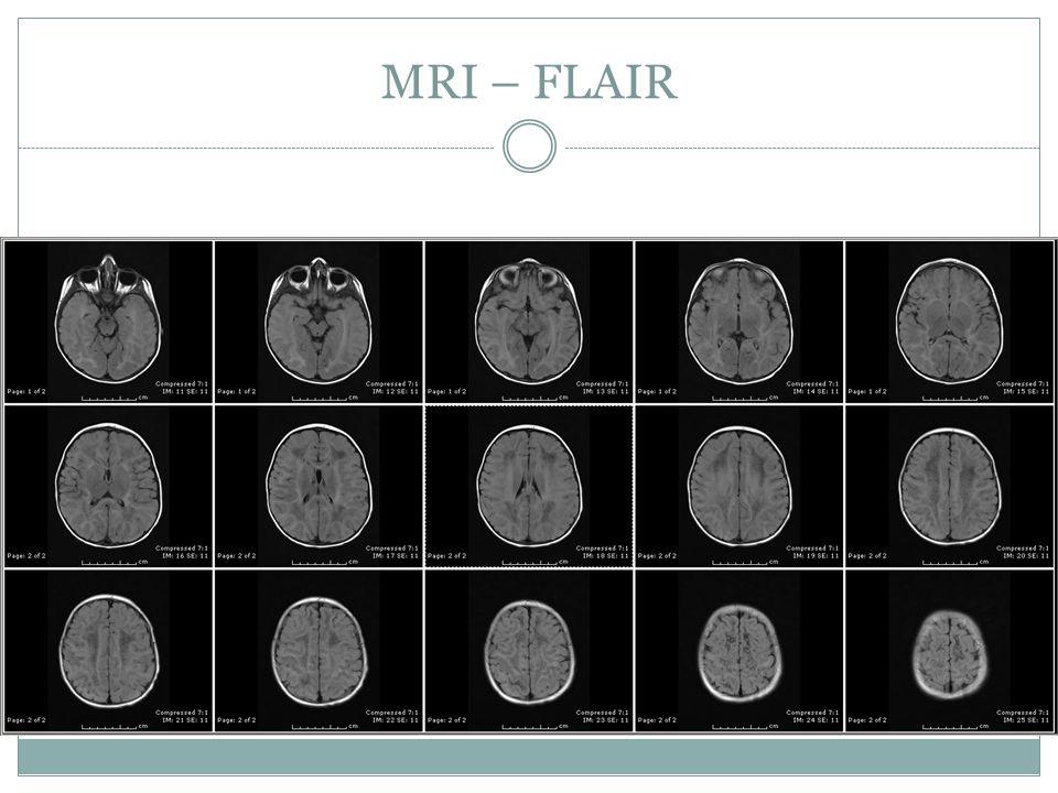 MRI – FLAIR