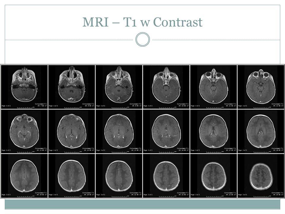 MRI – T1 w Contrast