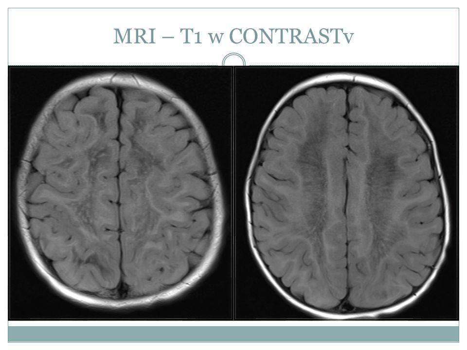 MRI – T1 w CONTRASTv
