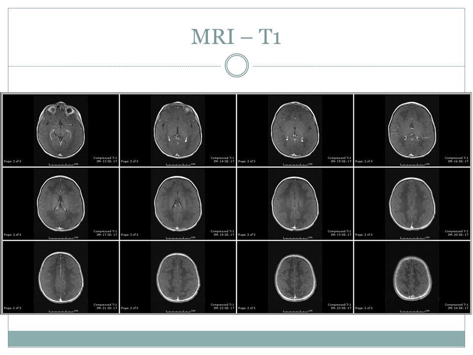 MRI – T1